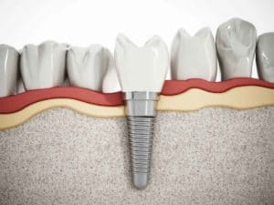 Choose Dental Implants for a Natural Looking Smile