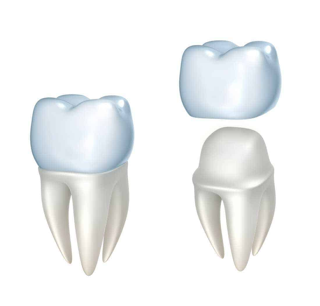 Is a dental crown right for you?